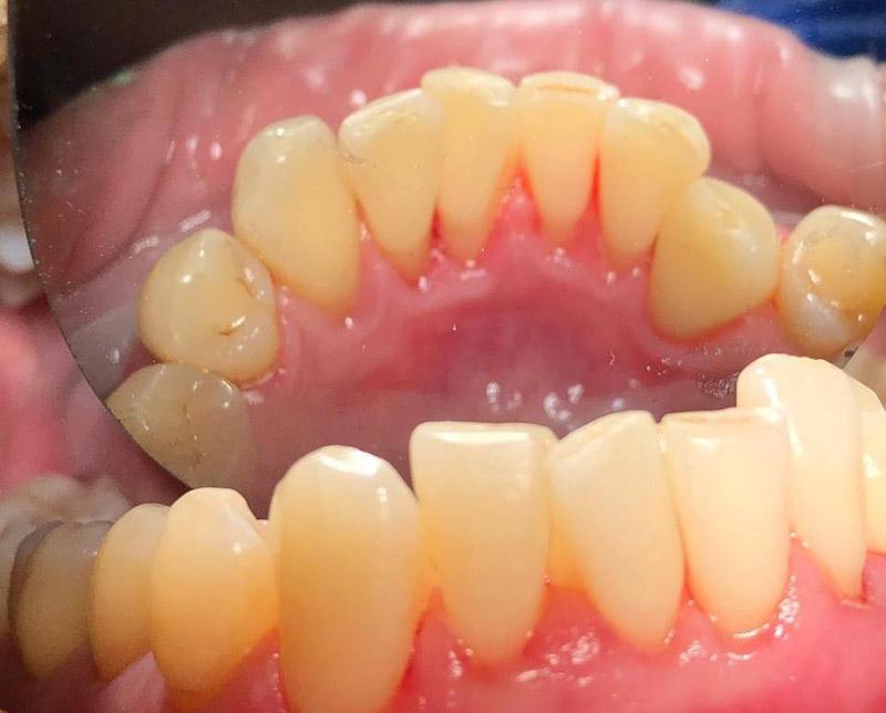 удаление зубного налета - после
