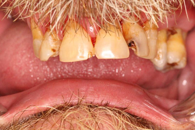 протезирование зубов - до