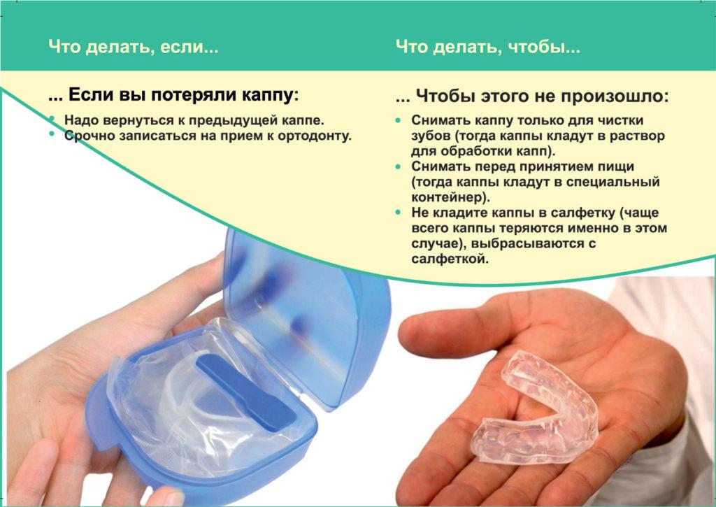 Памятка по использованию элайнеров (зубных капп)