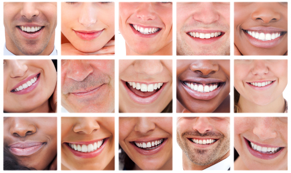 Проверь свою улыбку по индексу красоты!