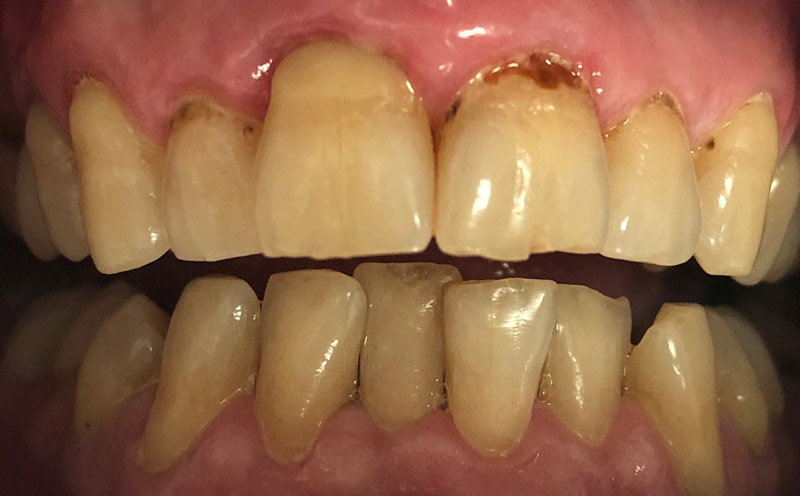 реставрация зубов-до