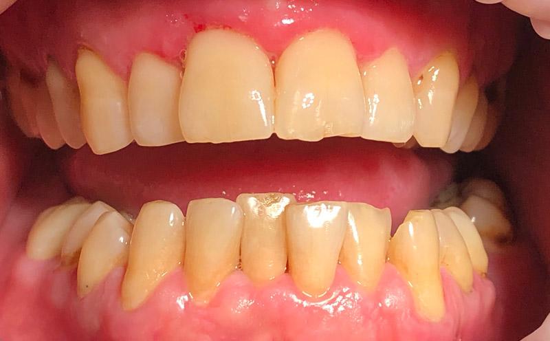 реставрация зубов-после