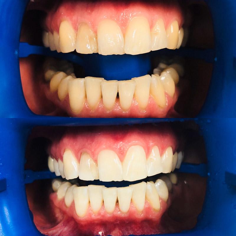 новая система делает зубы ещё светлее