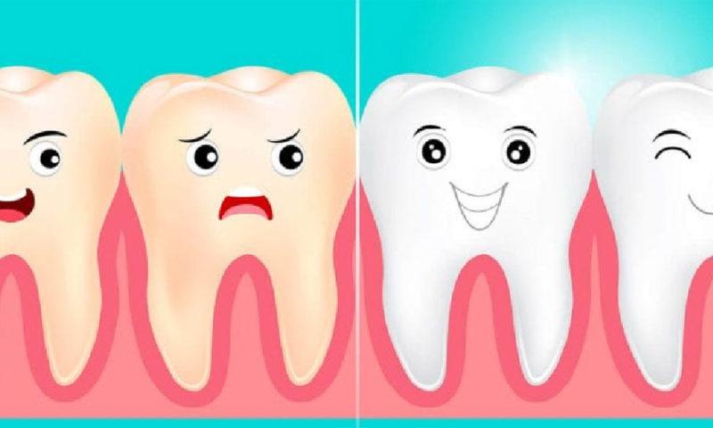 Как отбелить зубы во время карантина?