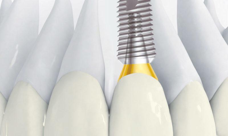 Корейские имплантаты Дентиум (Dentium) с коронкой по выгодной цене 52.000 рублей!