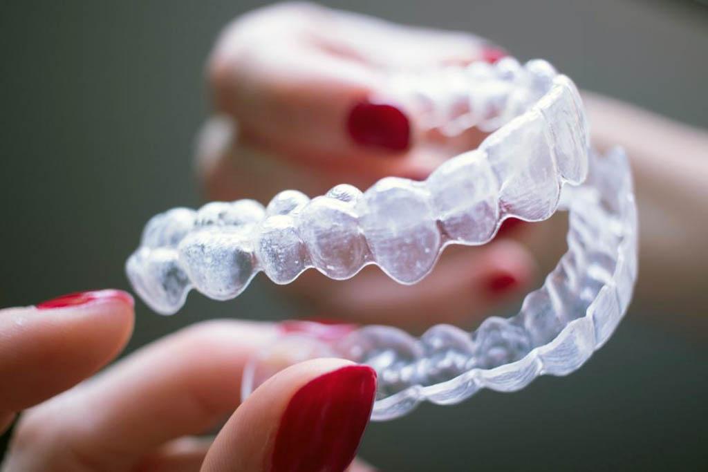 Элайнеры – это прозрачные ортодонтические каппы