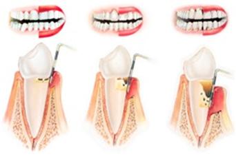 Разрушение зубов-десневого соединения и образование костного кармана