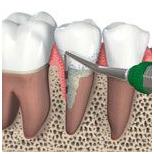 Этапы операции и восстановление костной ткани в области дефекта