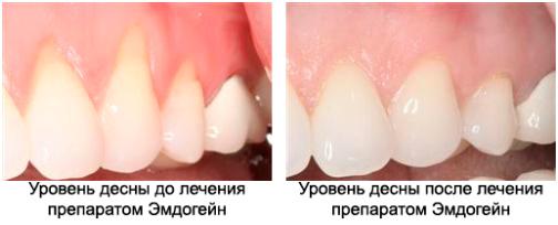 Результаты лечения пародонтита препаратом Эмдогейн