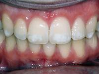 флюороз зубов различной степени тяжести