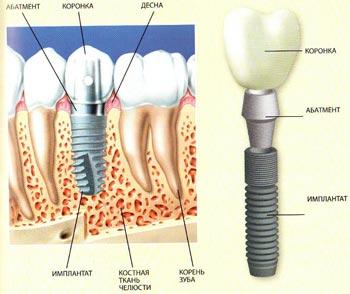 Что такое зубной (стоматологический) имплантат?