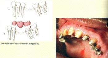 Преимущества имплантации: при имплантации естественные зубы не обтачиваются