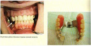 Преимущества имплантации: Использование имплантатов при потере боковых зубов позволяет изготовить несъемный протез