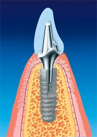 Как долго служат зубные имплантаты?