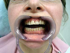 Быстрое замещение отсутствующих зубов капроновыми протезами (без обточки соседних зубов).