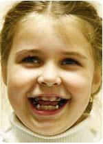 Какие несъемные аппараты Вы используете при лечении дистального прикуса у детей?