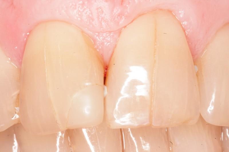 Зубные протезы как сделать