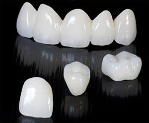 Что такое безметалловые керамические коронки на основе оксида циркония?