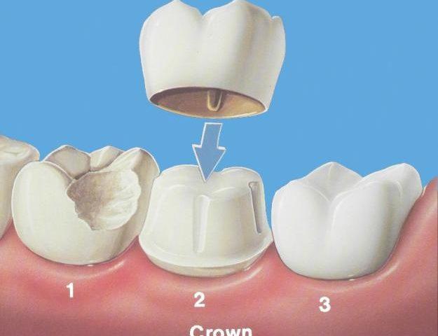 Что такое зубная коронка (искусственная)?
