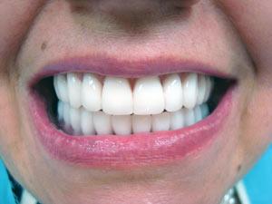Условно-съемные протезы с опорой на имплантаты при полном отсутствии зубов