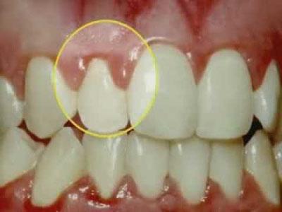 Что такое пародонтальный (зубодесневой) карман, как проводится его лечение?