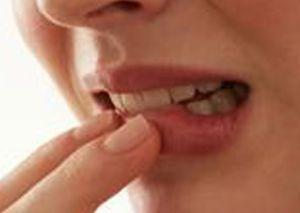 Какие типичные изменения, связанные с зубными протезами, обнаруживаются в ротовой полости?