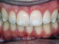 Флюороз зубов - причины возникновения, признаки, методы лечения флюороза.