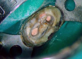 Результаты эндодонтического лечения с использованием стоматологического микроскопа