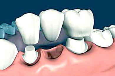 Какие материалы используются при изготовлении несъемных мостовидных зубных протезов?