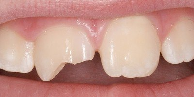 Травмы зубов. После травмы зуб выпал, отломился или поменял положение? Все поправимо!