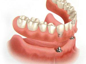 зубной протез с опорой на 2 имплантата
