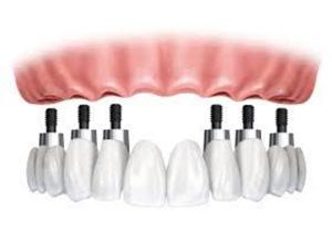 Зубной протез с опорой на 6 имплантатов