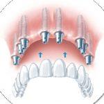 Протезирование беззубой челюсти на системе имплантатов Альфа Био