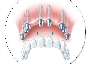 Зубной протез с опорой на 8 имплантатов