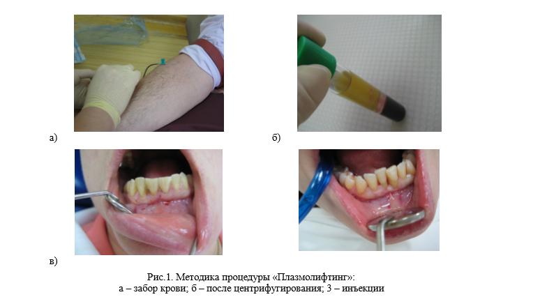 метод использования обогащенной тромбоцитами плазмы